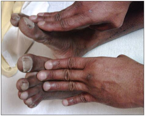 Differential clubbing and cyanosis in a patient with
