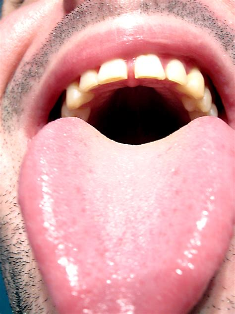Tongue Discoloration - Your Dental Health Resource